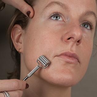 cosmetische acupunctuur opleiding